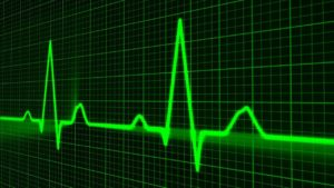 心筋梗塞の前兆の症状とは?その時の心電図はどうなっているか?